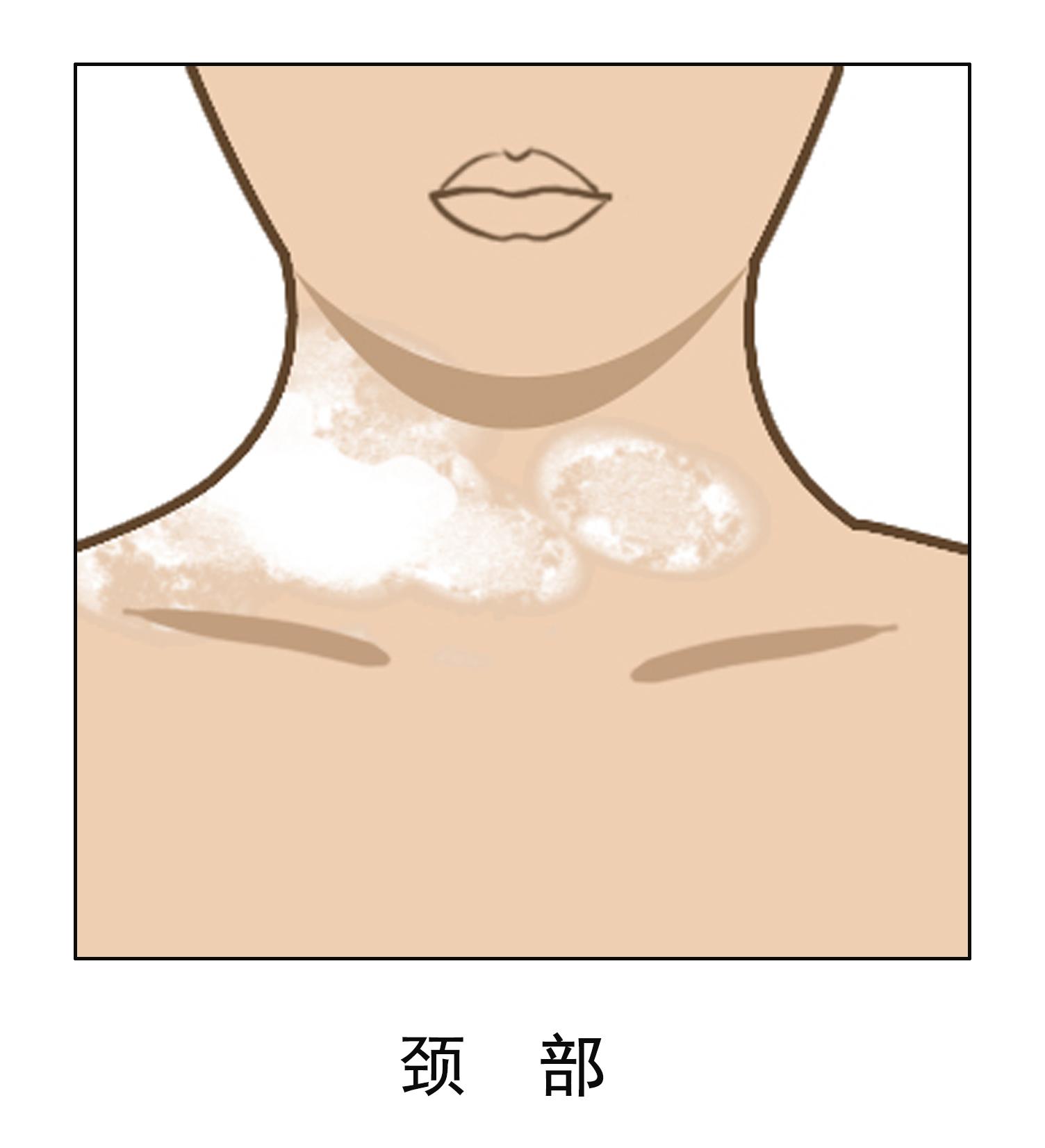昆明看白斑病专科医院:为什么颈部容易出现白癜风
