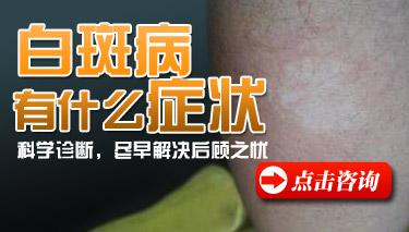 云南治疗白斑病医院:肢端型白癜风有哪些症状